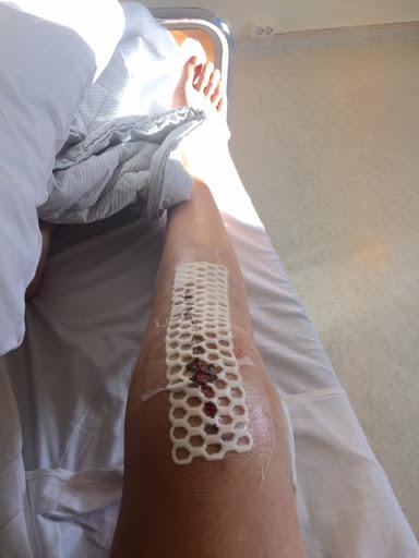 1 månede med protese